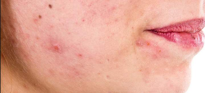 Сухой себорейный дерматит на лице лечение мази