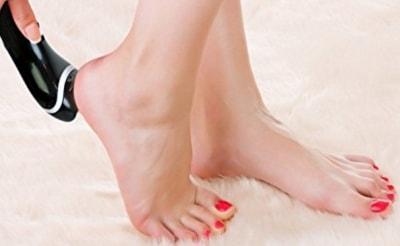 Как лечить мозоль на ступне