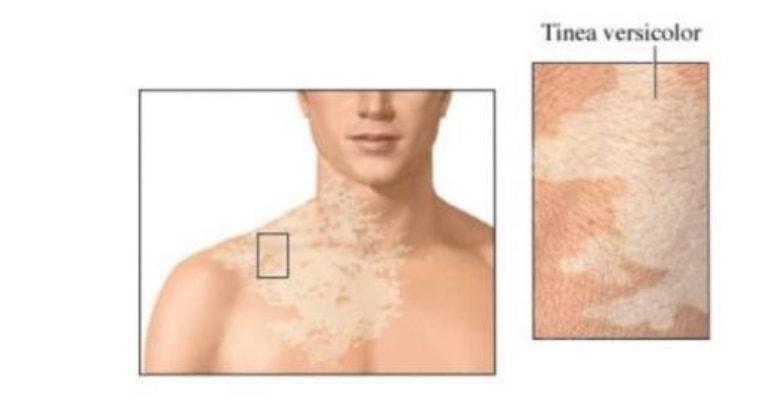 Аллергия на солнце: пятна на коже и не только