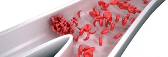 Густой кровь у человека как лечить