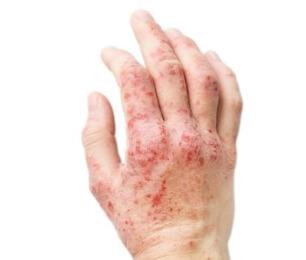 Красное пятно на коже чешется и шелушится: что это такое, чем лечить
