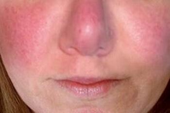 Возможные симптомы включают в себя крапивницу и зуд