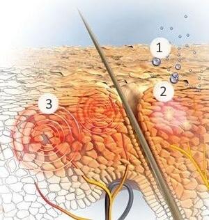 1. Влага теряется, вызывая сухость. 2. Микровоспалительные процессы вызывают дальнейшее раздражение. 3. Кожа головы начинает чесаться