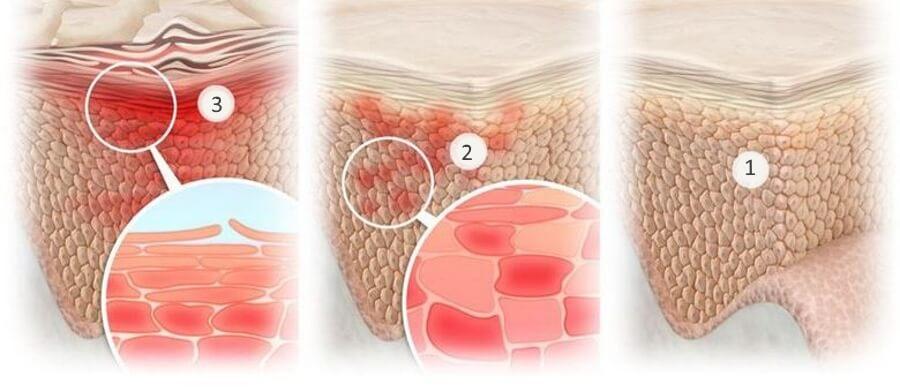 1. Здоровая кожа 2. Микровоспаление 3. Воспаление (эритема)