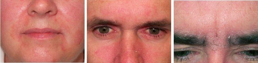 Себорейный дерматит на лице: фото, лечение, мази
