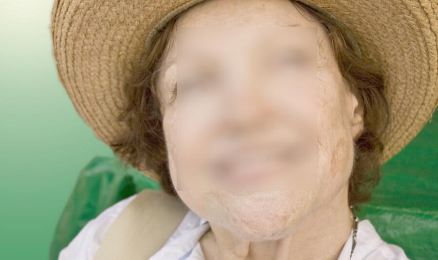 Зуд тела без сыпи причины лечение