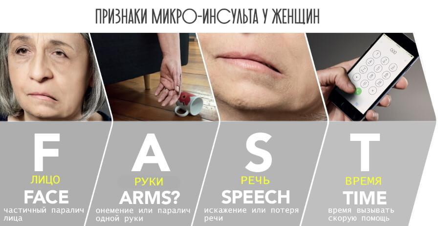 Микро инсульт -  какие симптомы у женщины?